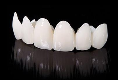 哪些人适合做美牙冠?美牙冠的优点有哪些?