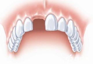 什么原因会造成缺牙?缺牙对生活会产生什么样的影响?