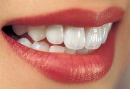 冷光牙齿美白能保持多久?冷光牙齿美白常见问题解答