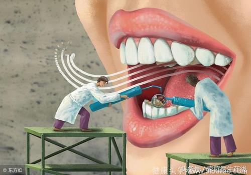 牙周病和牙龈出血是一个意思吗?牙周病的原因有哪些?