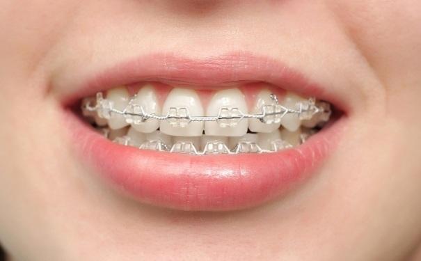 牙齿矫正后很多人为什么要后悔?牙齿矫正后悔一辈子是怎么回事