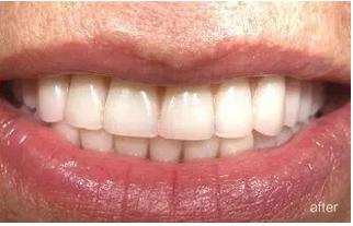 半口牙缺失种植牙案例