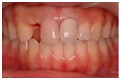 单颗牙缺失种植牙修复案例