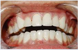 全口牙缺失种植案例