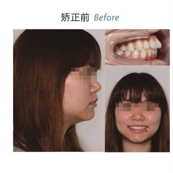 牙齿不整齐想矫正,哪种方式的好?