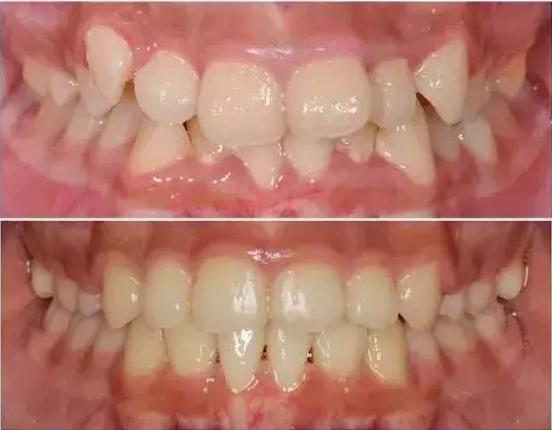 虎牙矫正怎样矫正才能达到最佳效果?