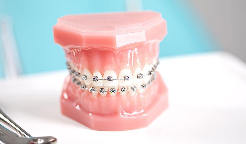 牙齿矫正后能正常吃饭吗?