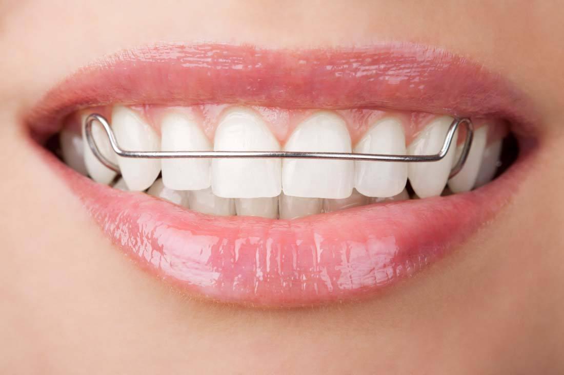 牙周病影响牙齿美容,这几点非常重要!