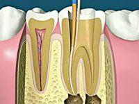根管治疗就是抽牙神经吗?根管治疗和牙髓治疗是一样吗?