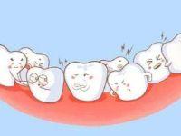 虎牙是什么?虎牙必须要拔掉吗?虎牙矫正的方法有哪些?
